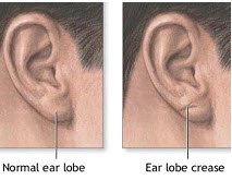earlobecrease