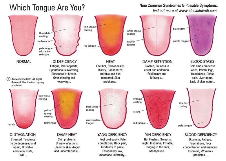China Life Web_tongue_chart